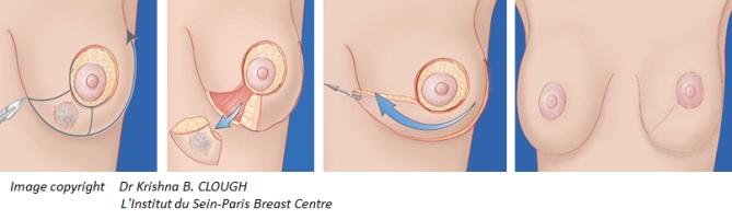 kuva-rintasyovan-leikkaus-suunnittelu
